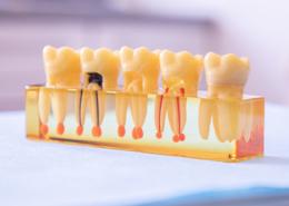 Michael Knapp Zahnarztpraxis Fulda – Parodontologie Zähne mit Schaden